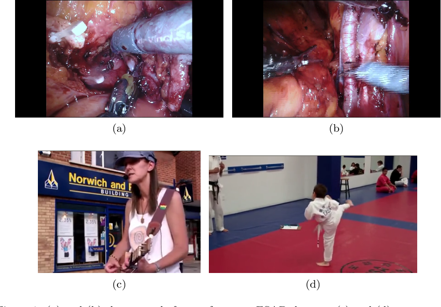 Figure 1 for The SARAS Endoscopic Surgeon Action Detection (ESAD) dataset: Challenges and methods