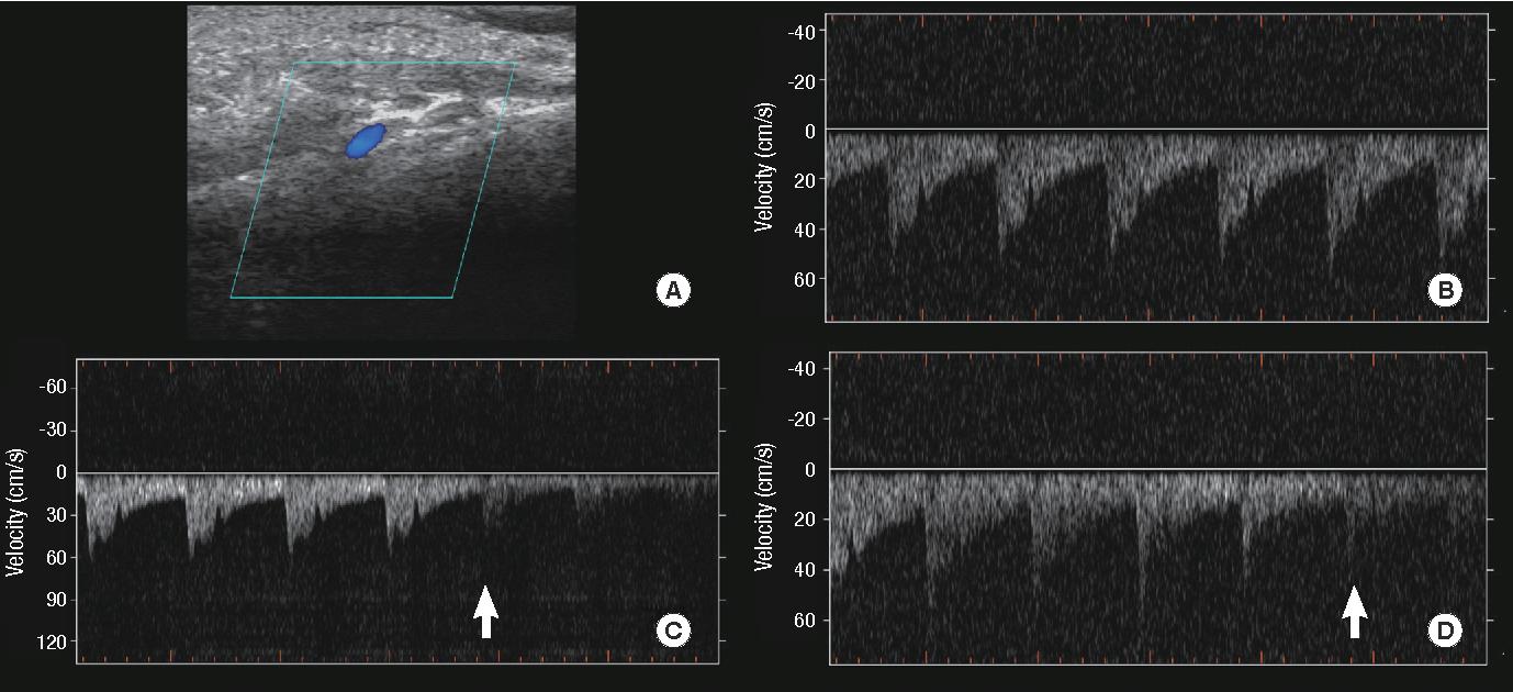 PDF] Pulsatile Tinnitus Caused by a Dilated Mastoid Emissary