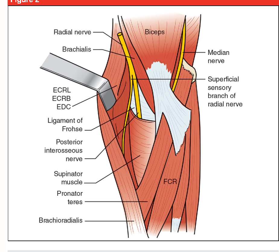 Ulnar Tunnel Syndrome Radial Tunnel Syndrome Anterior Interosseous