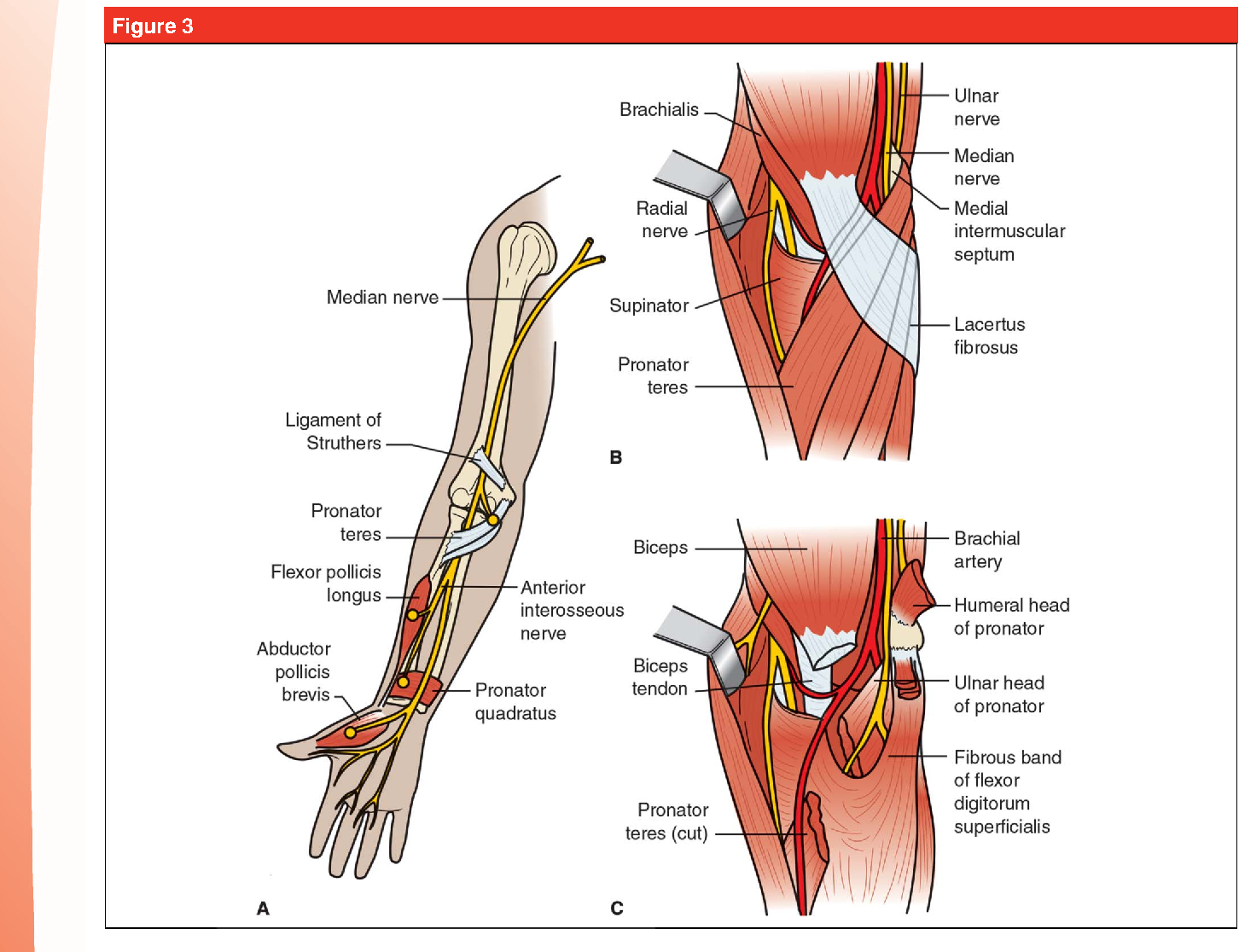 Ulnar Tunnel Syndrome, Radial Tunnel Syndrome, Anterior Interosseous ...