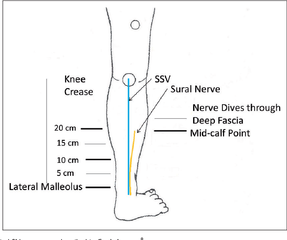 The Sural Nerve Sonographic Anatomy Variability And Relation To