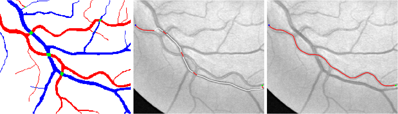 Figure 1 for A New Coherence-Penalized Minimal Path Model with Application to Retinal Vessel Centerline Delineation