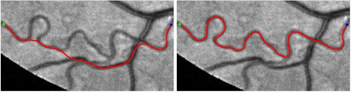 Figure 3 for A New Coherence-Penalized Minimal Path Model with Application to Retinal Vessel Centerline Delineation