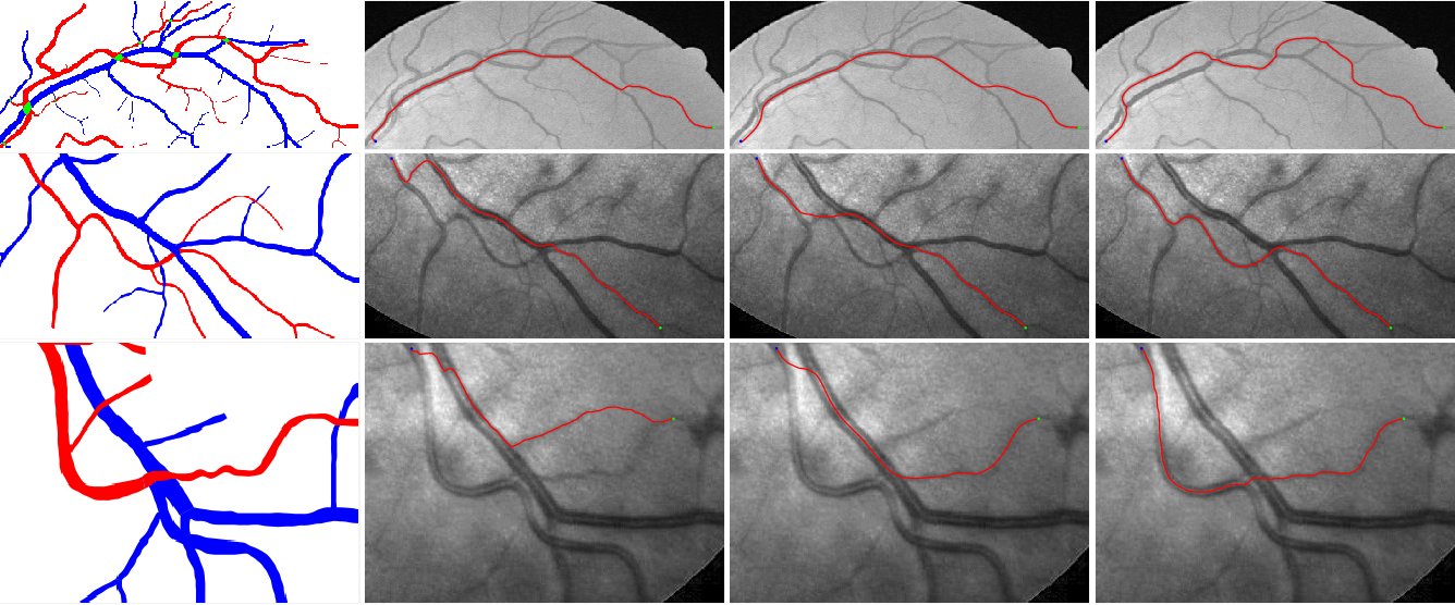 Figure 4 for A New Coherence-Penalized Minimal Path Model with Application to Retinal Vessel Centerline Delineation