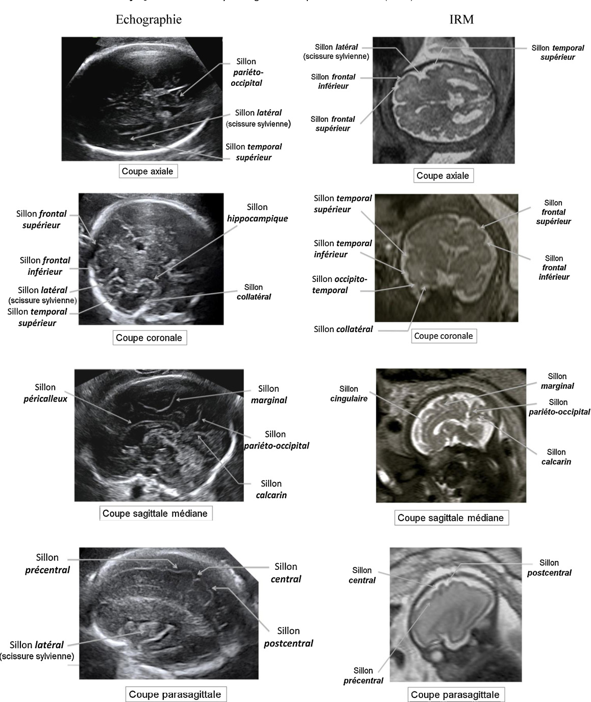 Figure 1 from [Prenatal analysis of primary sulci by ultrasonography ...