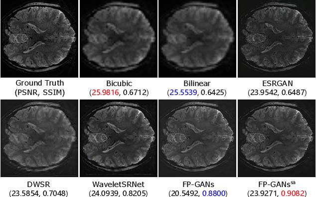 Figure 3 for Fine Perceptive GANs for Brain MR Image Super-Resolution in Wavelet Domain