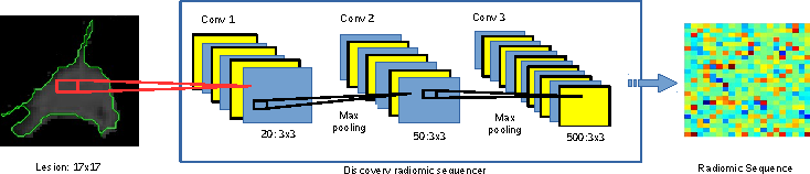 Figure 3 for Discovery Radiomics for Pathologically-Proven Computed Tomography Lung Cancer Prediction