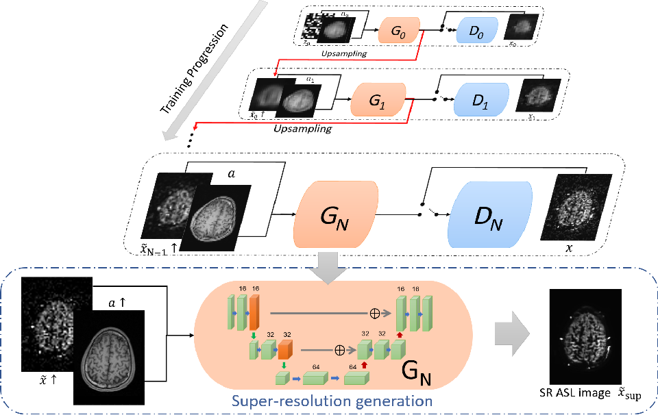Figure 1 for Super Resolution of Arterial Spin Labeling MR Imaging Using Unsupervised Multi-Scale Generative Adversarial Network