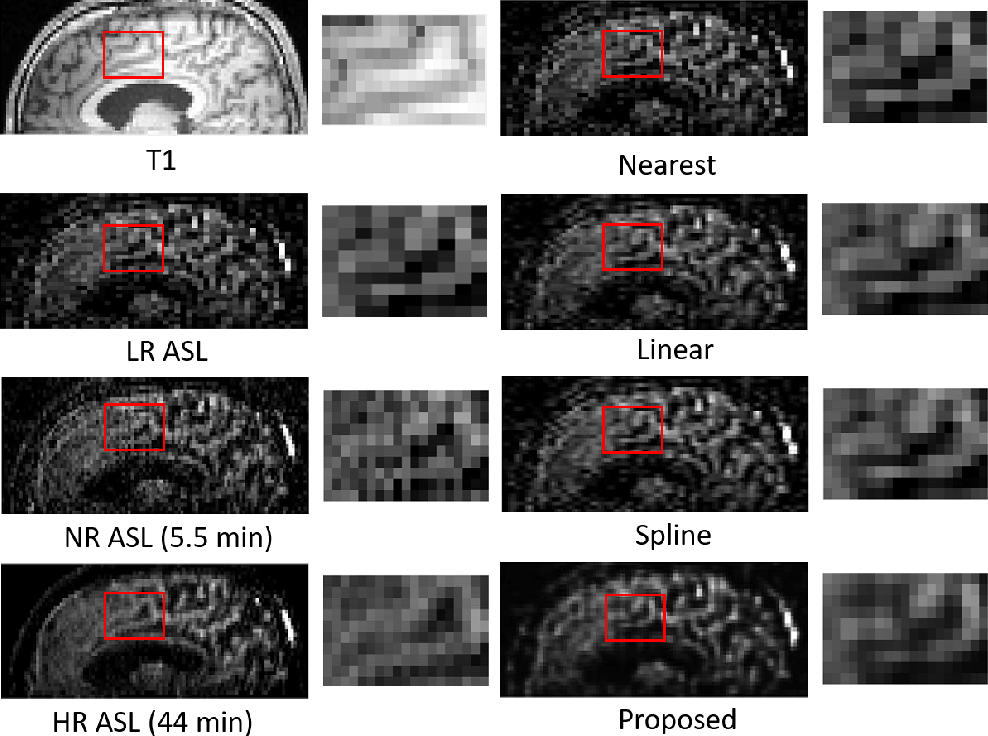 Figure 3 for Super Resolution of Arterial Spin Labeling MR Imaging Using Unsupervised Multi-Scale Generative Adversarial Network