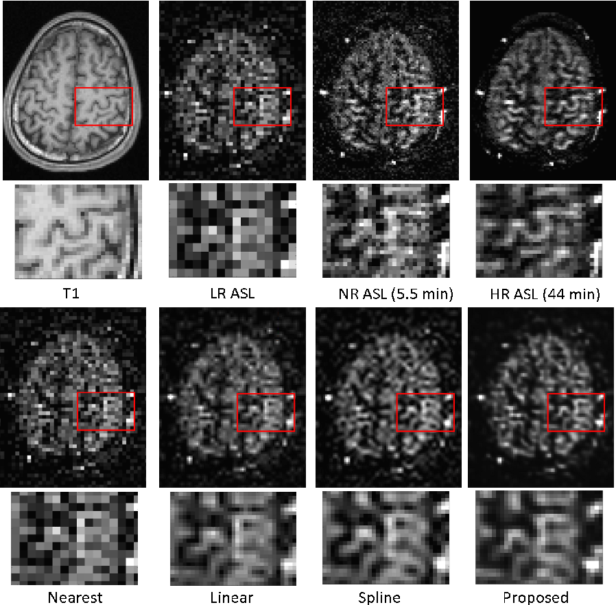 Figure 4 for Super Resolution of Arterial Spin Labeling MR Imaging Using Unsupervised Multi-Scale Generative Adversarial Network