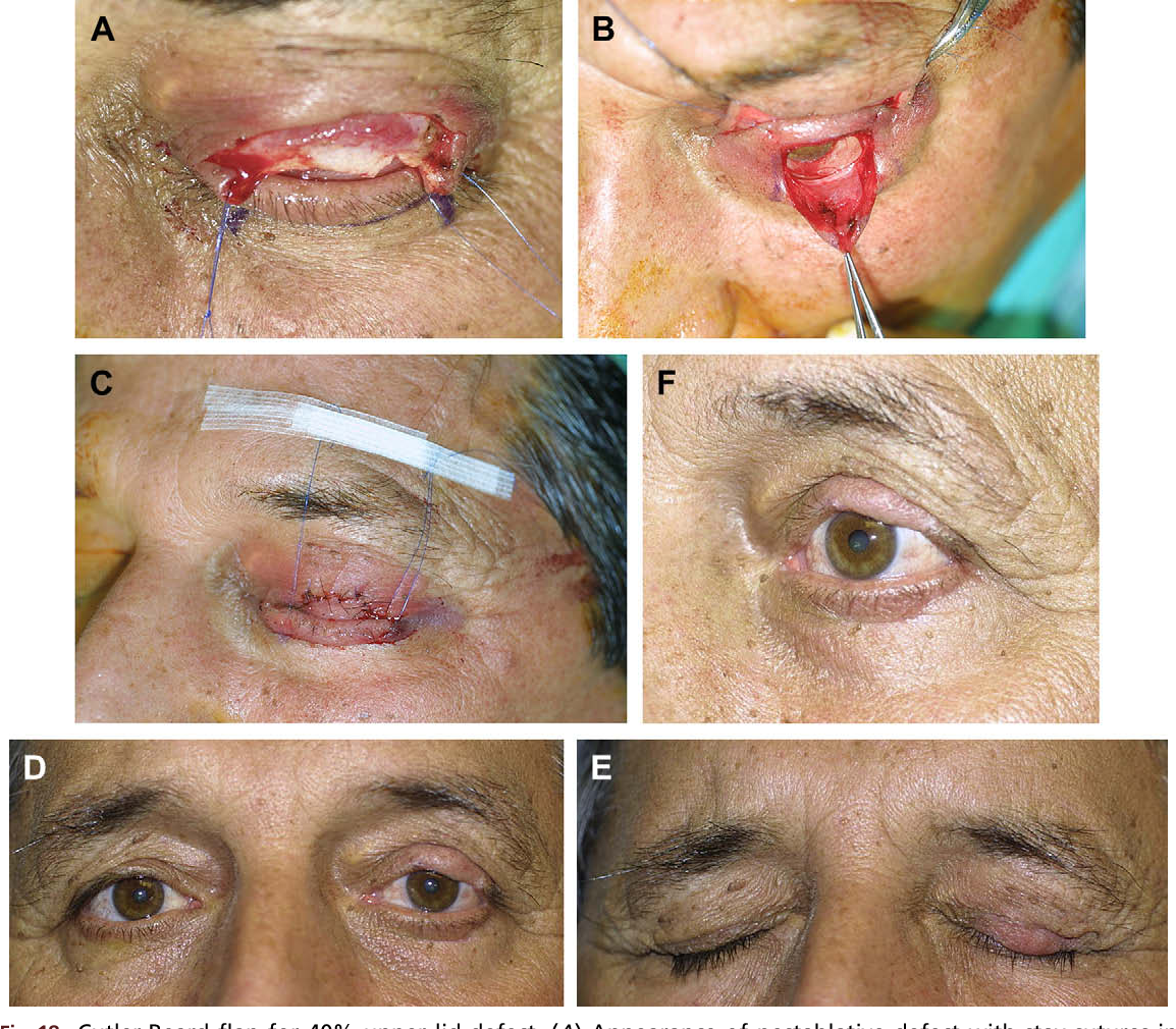 Figure 14 from Aesthetic eyelid reconstruction. - Semantic Scholar