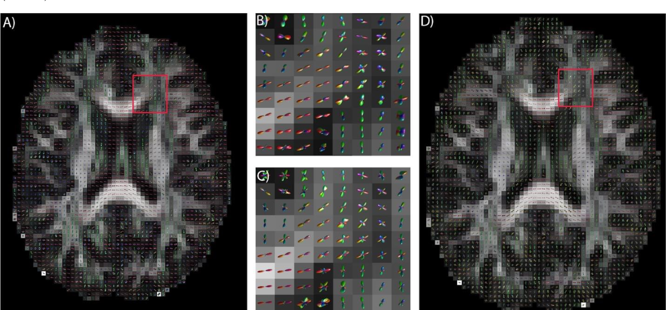 Figure 4 for Deep Learning Captures More Accurate Diffusion Fiber Orientations Distributions than Constrained Spherical Deconvolution