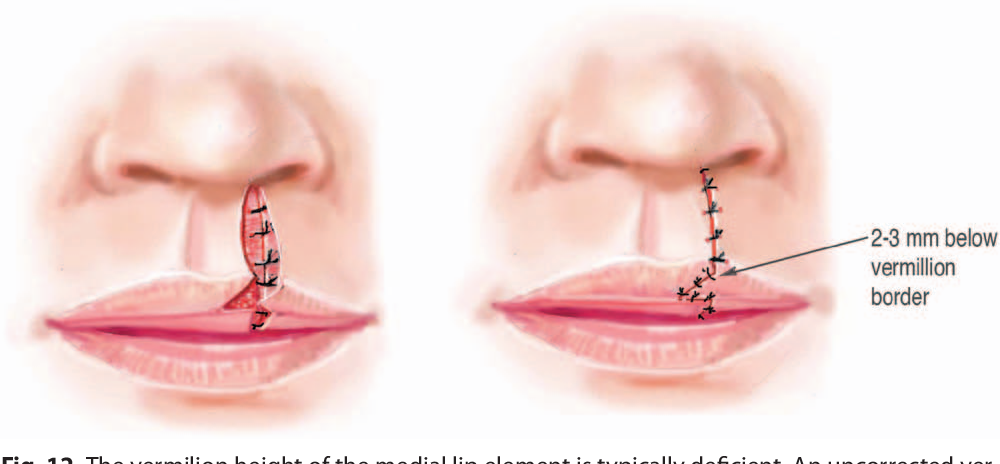 Principles of Cleft Lip Repair: Conventions, Commonalities, and