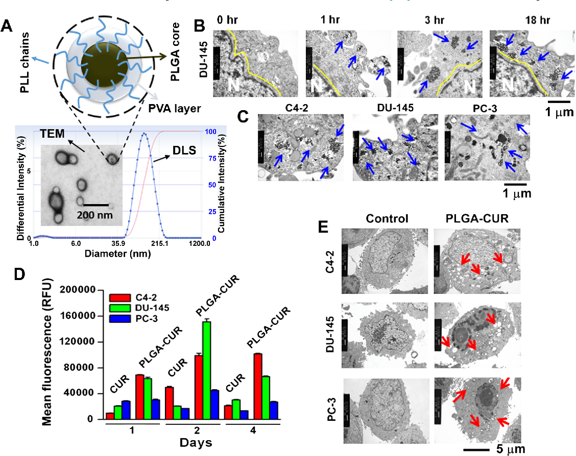 Anti-cancer activity of curcumin loaded nanoparticles in prostate ...