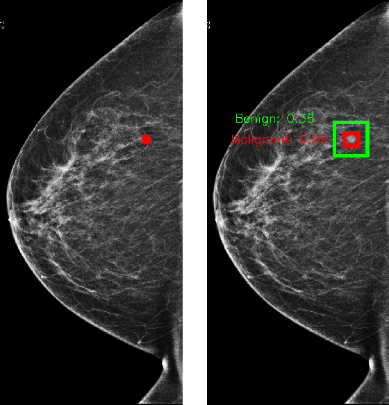 Figure 2 for Improving localization-based approaches for breast cancer screening exam classification