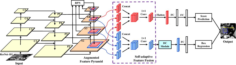 Figure 1 for A Novel and Efficient Tumor Detection Framework for Pancreatic Cancer via CT Images