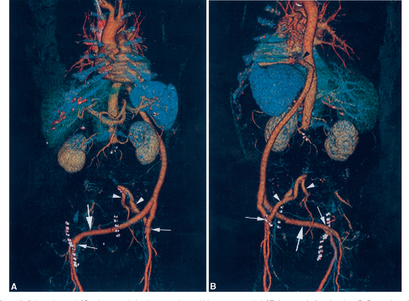 Figure 1 From Three Dimensional Images Of Extra Anatomic Arterial