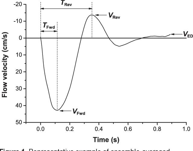 Aortic Stiffness Determines Diastolic Blood Flow Reversal In The