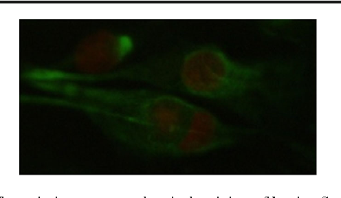 Fig. 4 Vimentin immunocytochemical staining of bovine Sertoli cell