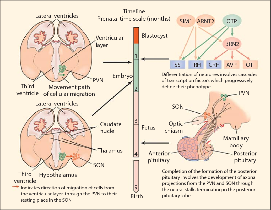 Figure 1 From Developmental Abnormalities Of The Posterior Pituitary