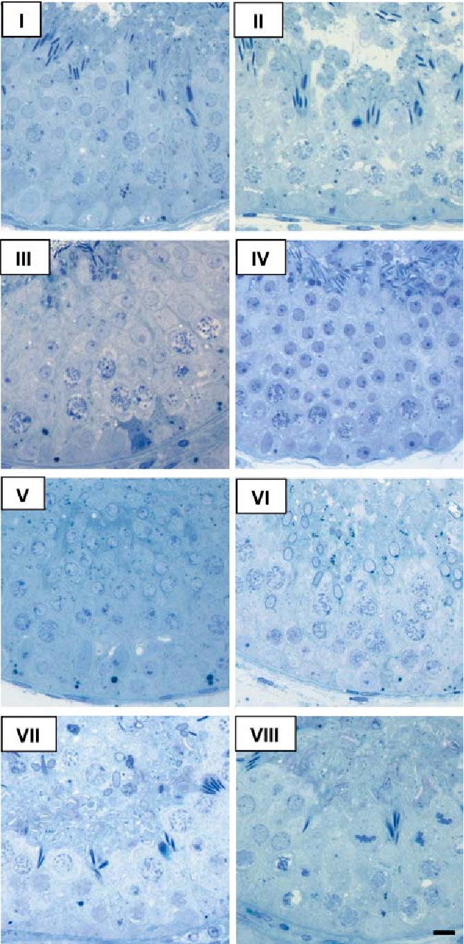 Fig. 3 Micrographs of the stages of the seminiferous epithelium cycle in roe deer during highly active spermatogenesis in June. Semi-thin sections stained with toluidine blue, 400. Scale bar, 10 m