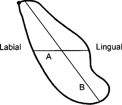 Figure 1 From Mandibular Symphysis Of Large Bodied Hominoids