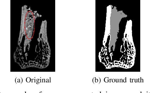Figure 1 for Multi-Class Micro-CT Image Segmentation Using Sparse Regularized Deep Networks