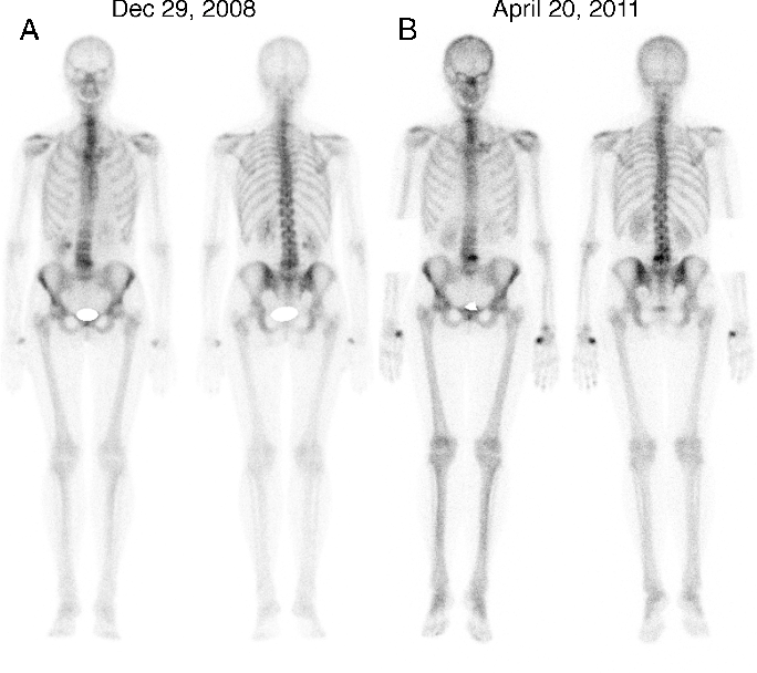 Figure 3 from Bone scan alterations in aromatase inhibitor-treated ...