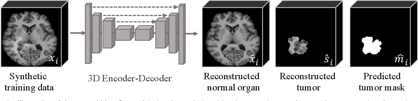 Figure 2 for Self-supervised Tumor Segmentation through Layer Decomposition