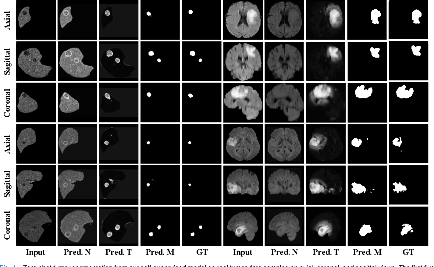 Figure 4 for Self-supervised Tumor Segmentation through Layer Decomposition