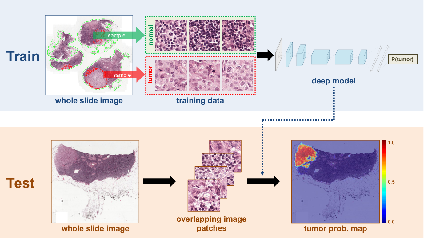 Figure 3 for Deep Learning for Identifying Metastatic Breast Cancer