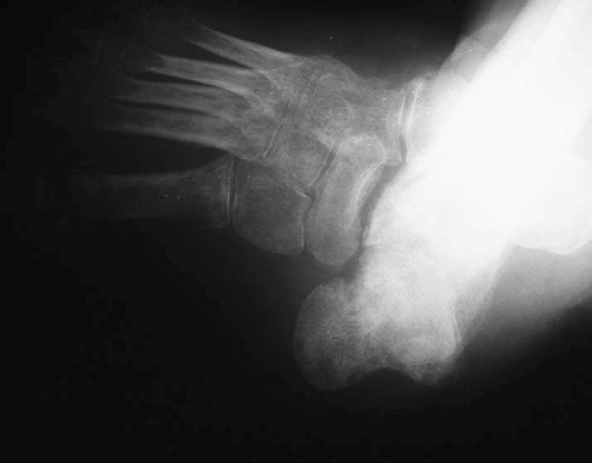 Fig. 6. Clear dislocation at the talonavicular joint. The talus is plantarflexed and medially dislocated.