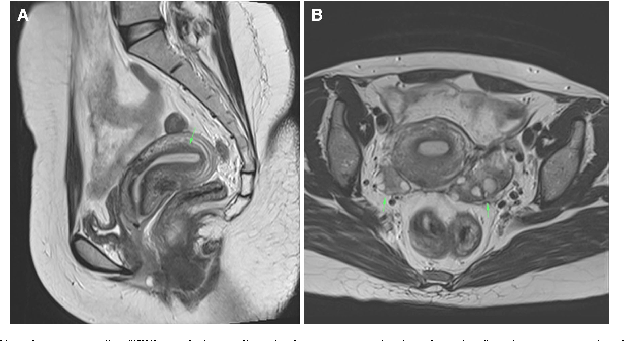 Figure 1 from Value of MRI in Characterizing Adnexal Masses ...