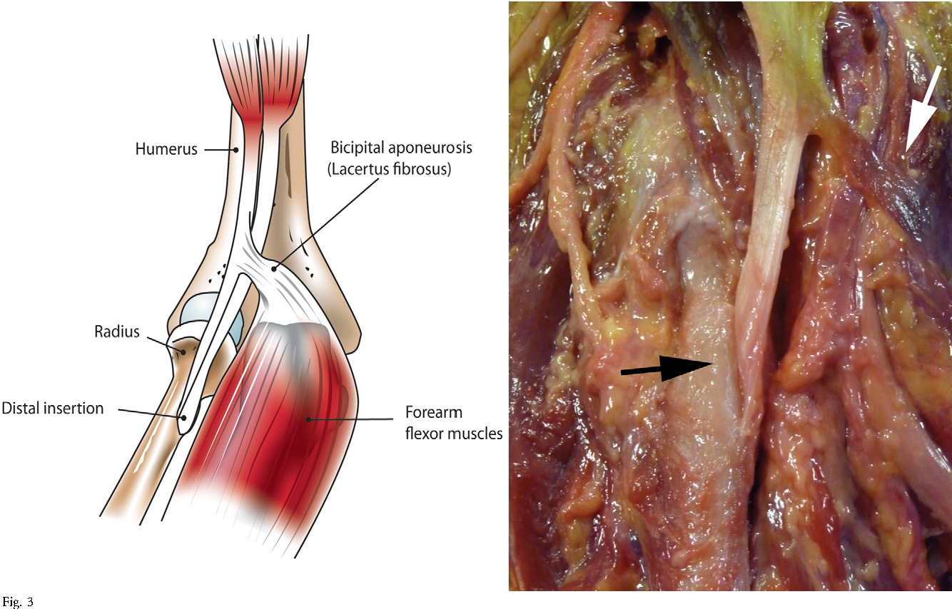 Figure 3 From Distal Biceps Tendon Injuries Semantic Scholar