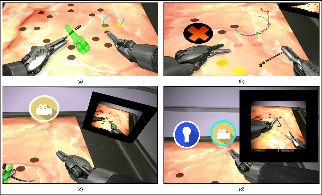 Figure 2 for Real-time Teaching Cues for Automated Surgical Coaching
