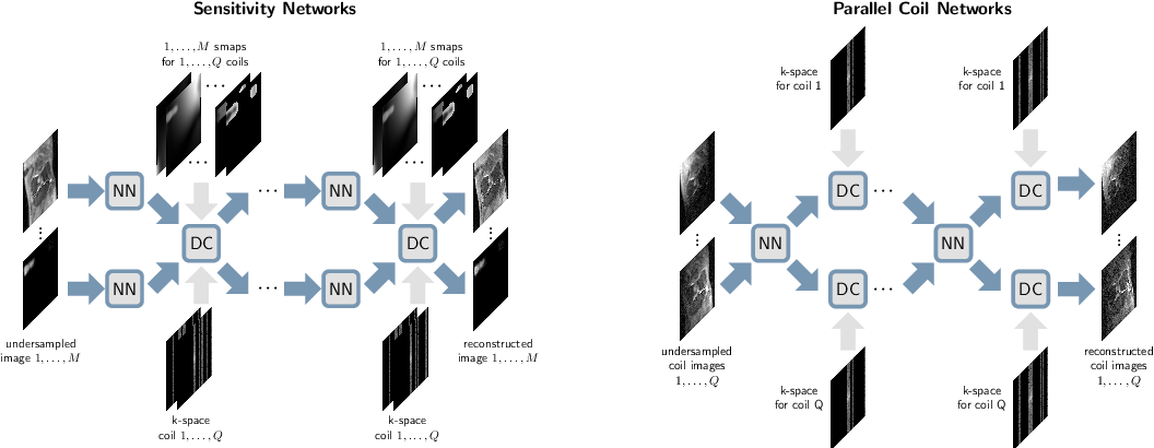 Figure 3 for $Σ$-net: Systematic Evaluation of Iterative Deep Neural Networks for Fast Parallel MR Image Reconstruction