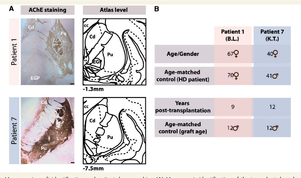 Figure 1 from Striatal allografts in patients with Huntington\'s ...