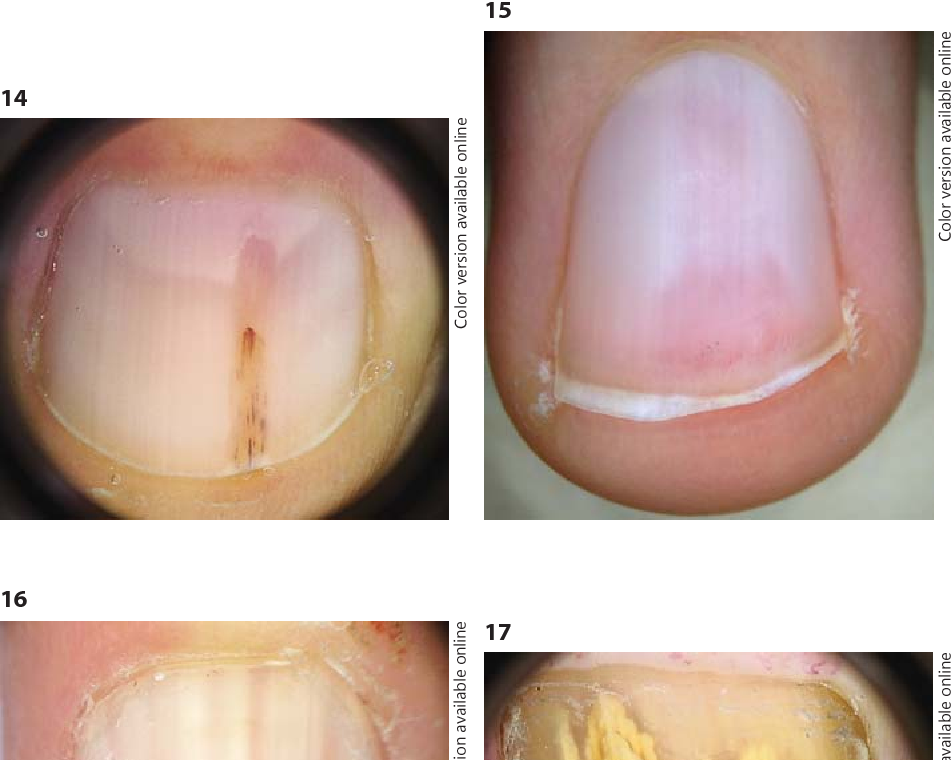 Figure 14 from Dermoscopy in the Evaluation of Nail Disorders Aurora ...