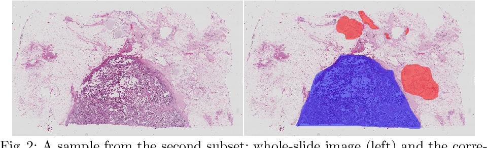 Figure 3 for Ensembling Neural Networks for Digital Pathology Images Classification and Segmentation