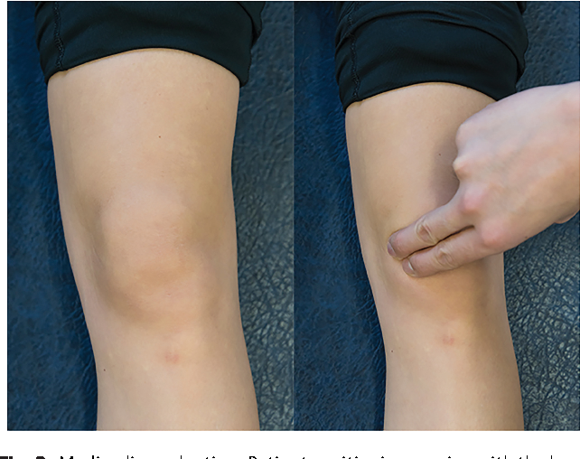 Synovial Plica Syndrome of the Knee: A Commonly Overlooked Cause of ...