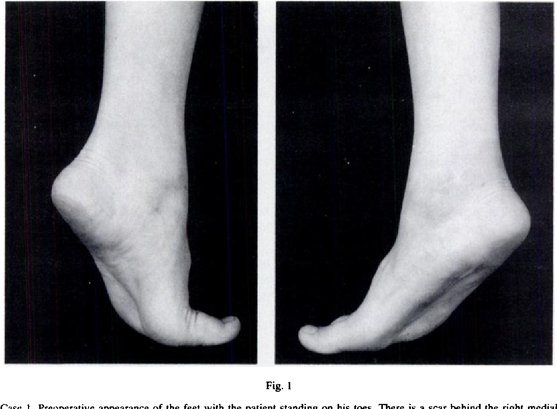 Pes Planus In Childhood Due To Tibialis Posterior Tendon Injuries