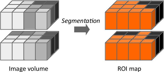 Figure 4 for Image biomarker standardisation initiative