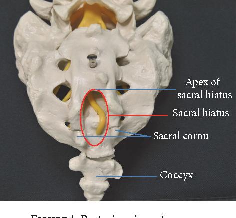 Sacral Hiatus Anatomy - Human Anatomy