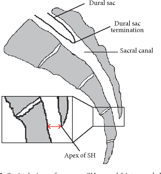 Figure 2 from Caudal Epidural Block: An Updated Review of Anatomy ...