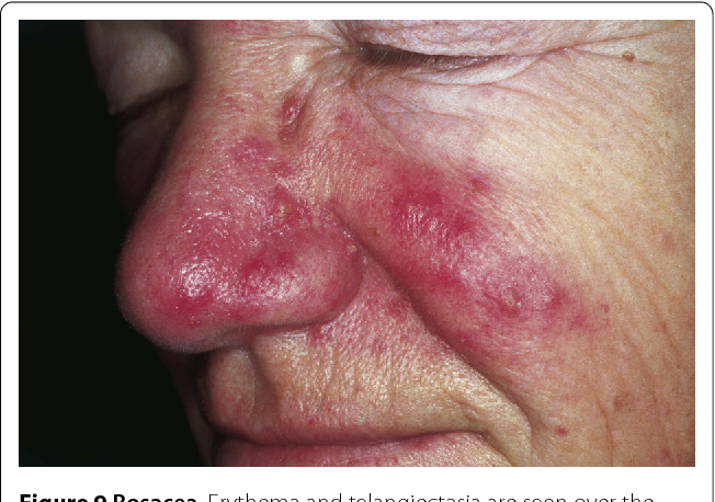 Figure 9 from Cutaneous lesions of the nose - Semantic Scholar