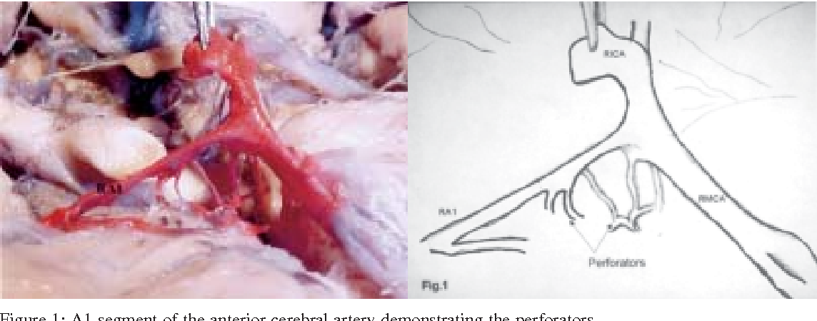 Figure 1 from Microsurgical anatomy of the anterior cerebral artery ...