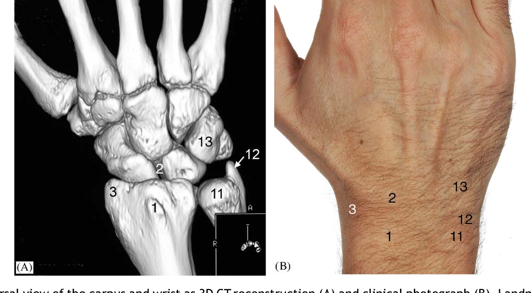 Figure 2 From I Examination Of The Wristsurface Anatomy Of The