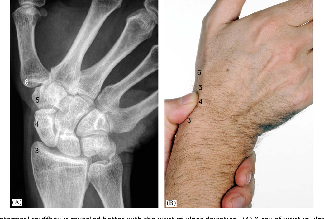 Figure 6 From I Examination Of The Wristsurface Anatomy Of The