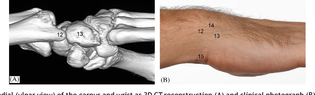 Figure 8 From I Examination Of The Wristsurface Anatomy Of The