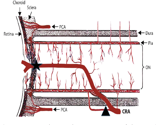 A review of central retinal artery occlusion: clinical presentation ...